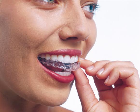 Los beneficios de la ortodoncia invisible