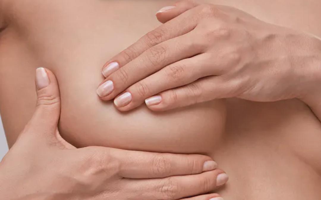 ¿Por qué es importante realizar una autoexploración mamaria periódicamente?